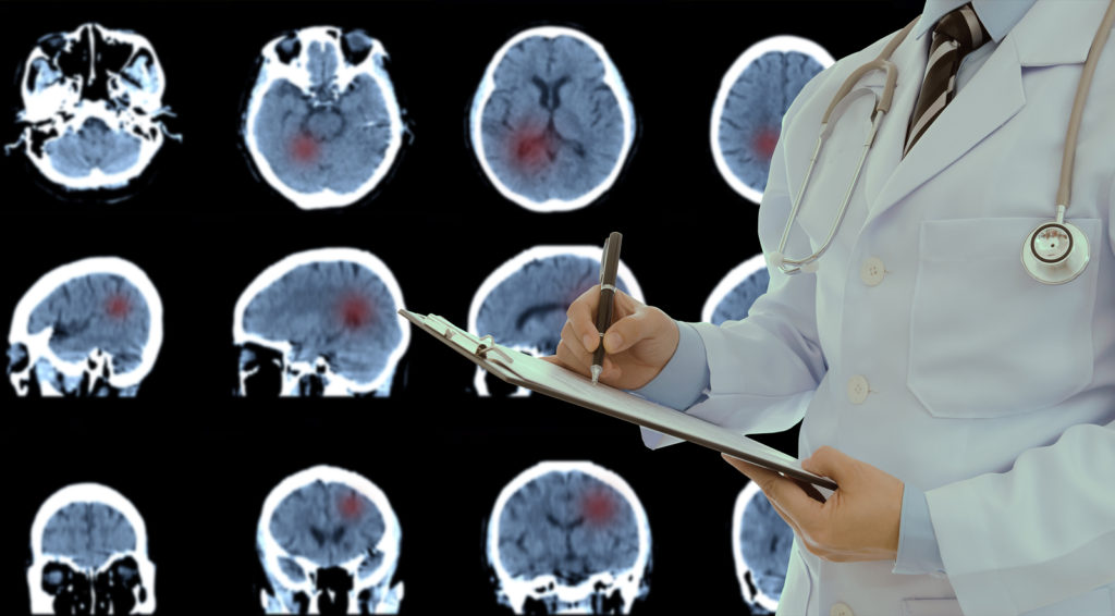 Study Reveals Exciting Development For Brain Tumour Test
